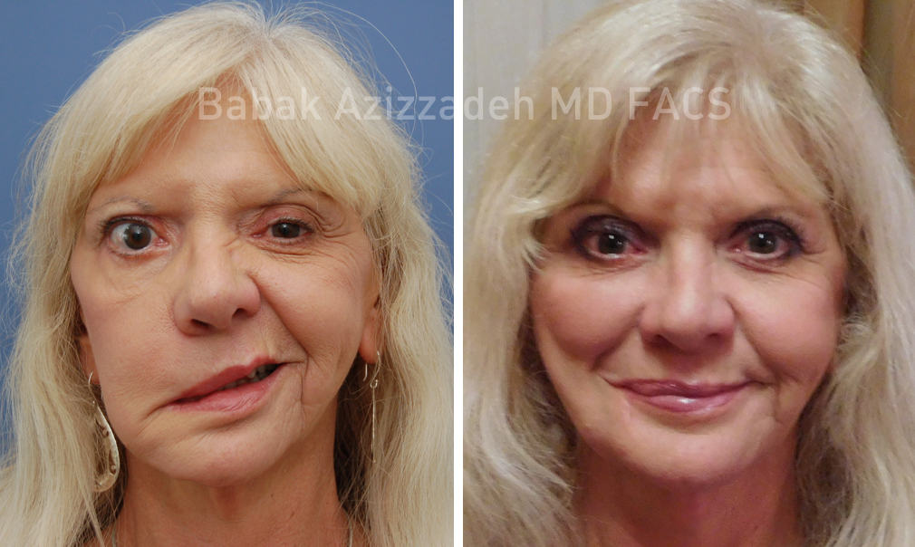 Before and after facial paralysis
