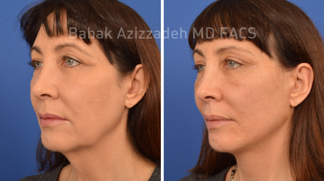 Brow Lift Forehead Eyebrow Lift Surgery Beverly Hills Dr