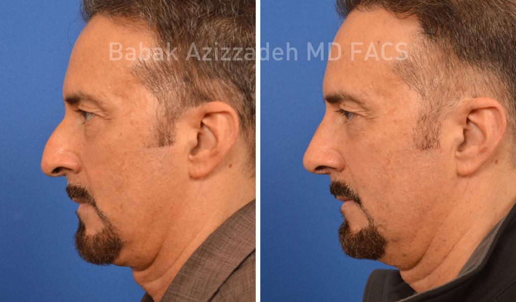 Male Rhinoplasty - Beverly Hills | Dr  Babak Azizzadeh | CENTER
