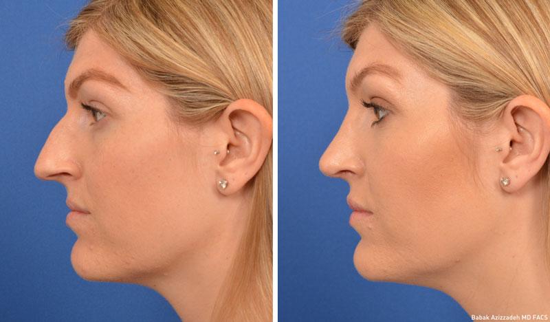 Rhinoplasty - Beverly Hills Rhinoplasty Surgeon | CENTER