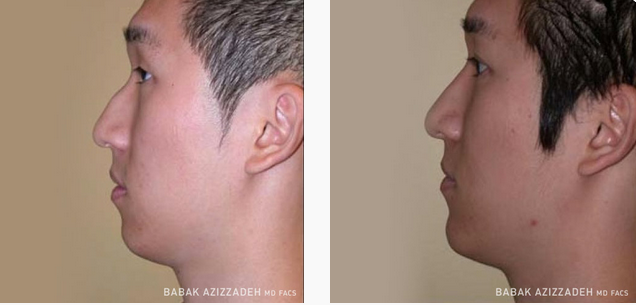 Remarkable, asian nose rhinoplasty excellent message
