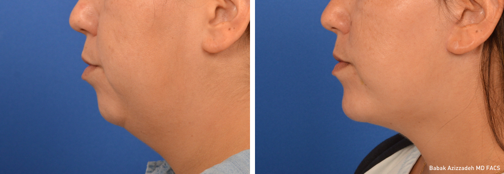Chin Liposuction Double Chin Surgery Beverly Hills Center