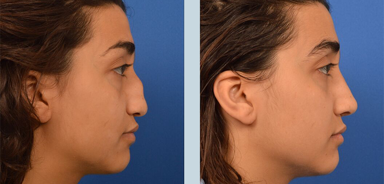 Ethnic Rhinoplasty Before & Afters