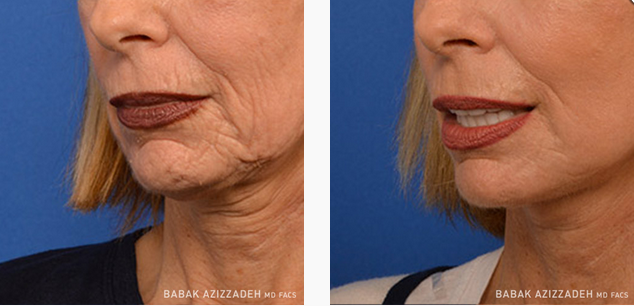 woman before and after laser skin resurfacing