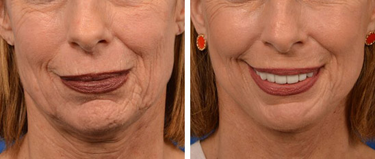 Facelift Before & Afters
