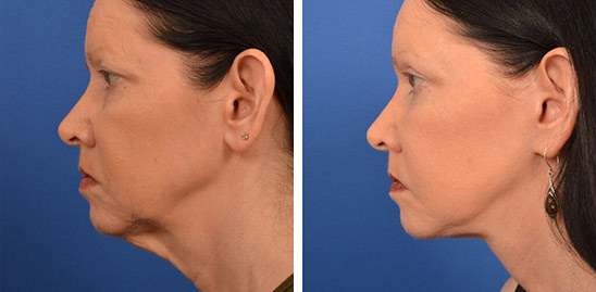 Neck Lift Before & Afters