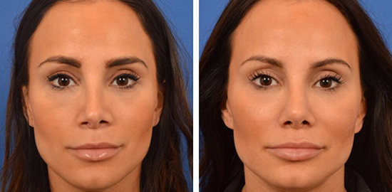 Revision Rhinoplasty Before & Afters