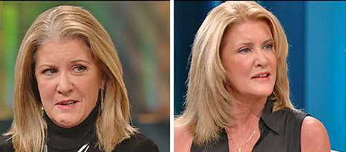 Mary Jo Buttafuco before and after aesthetic facial reanimation surgery