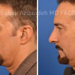 Why Rhinoplasty Is Becoming More Popular Among Men