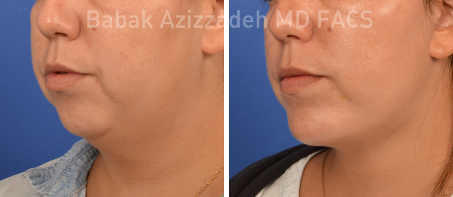 Buccal fat pad removal before and after photo