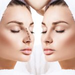 The Difference Between Open and Closed Rhinoplasty