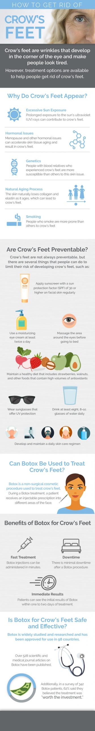 Crows Feet Treatment Options Infographic
