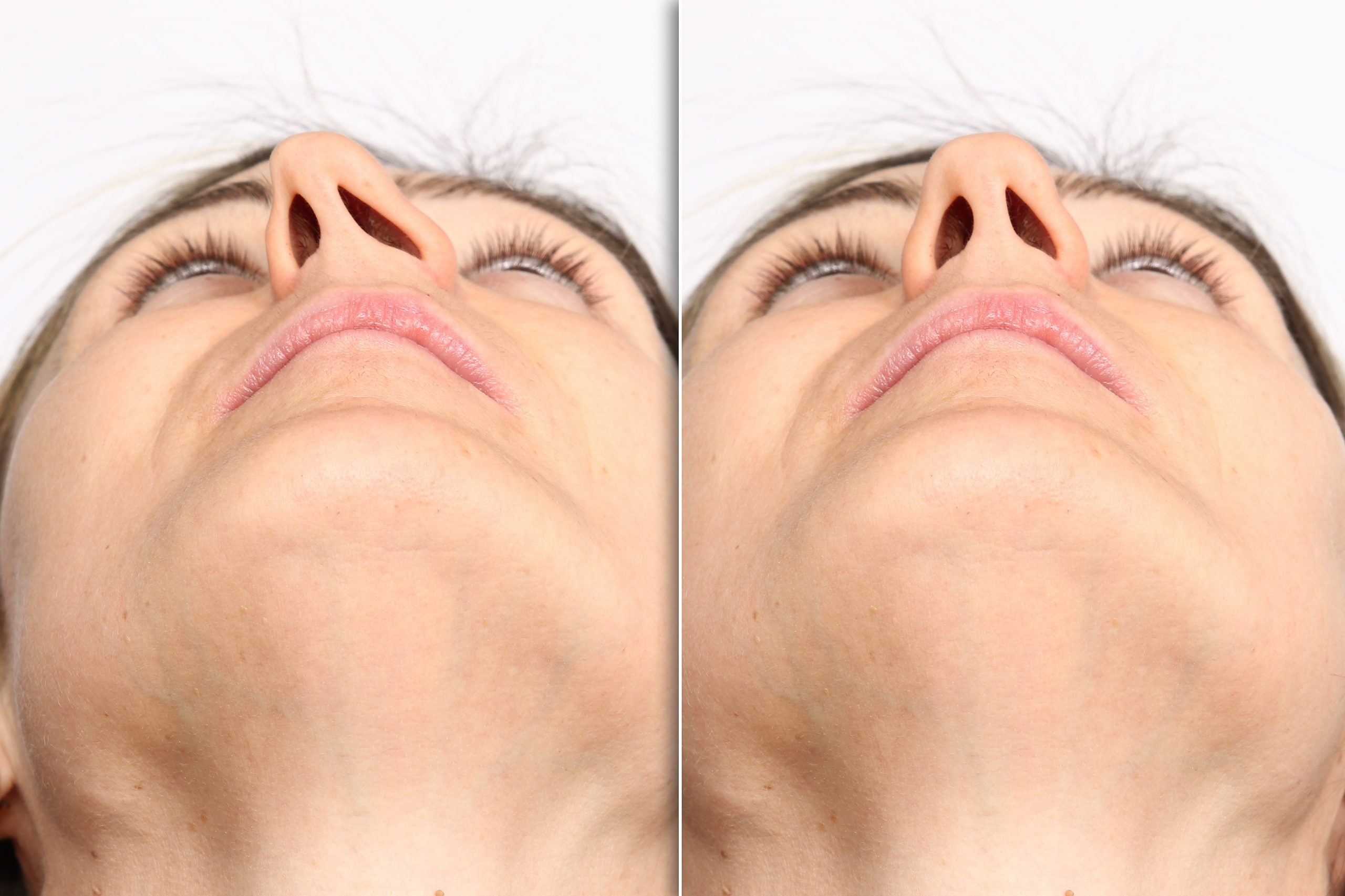 Woman with deviated septum and corrected septum