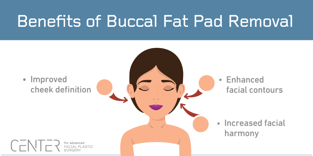 Benefits of Buccal Fat Pad Removal