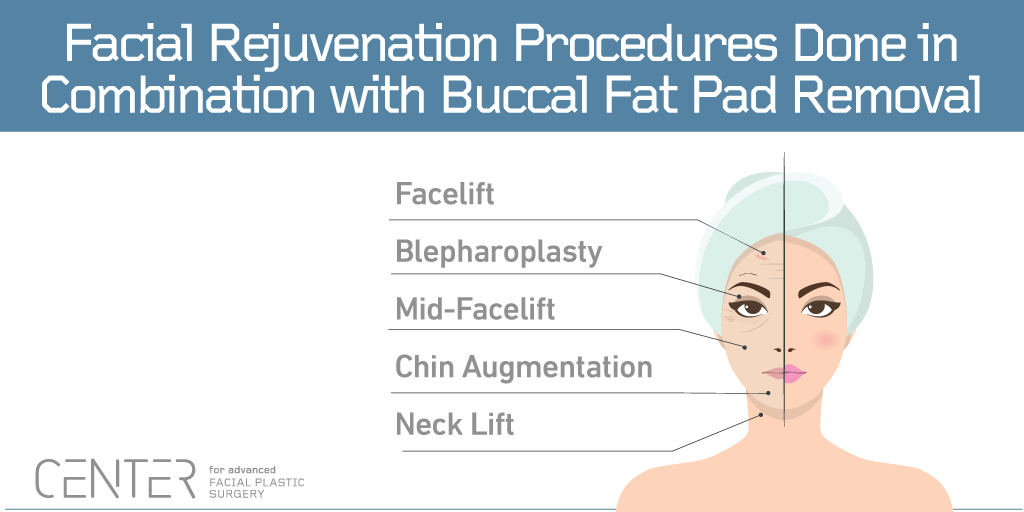 Facial Rejuvenation Procedures Done in Combination with Buccal Fat Pad Removal