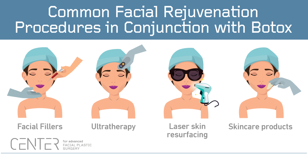 Common Facial Rejuvenation Procedures in Conjunction with Botox
