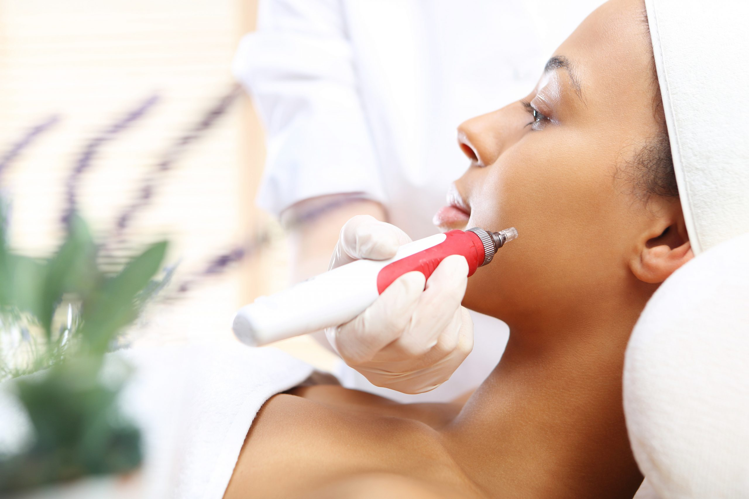 doctor applying microneedling treatment to female patient's face