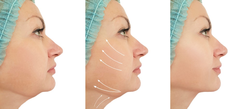 three progress pictures of a woman's chin improving from liposuction