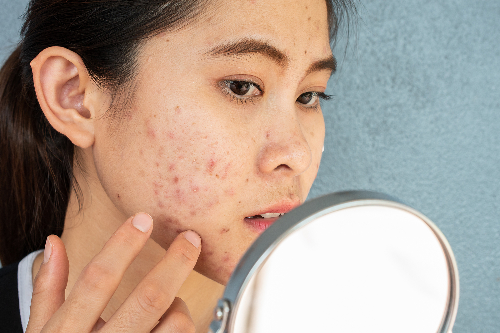Facial Plastic Surgery Candidate with Acne